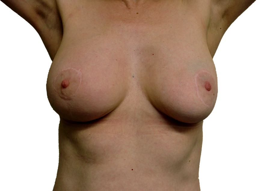 Breast Care Leicester Cancer Surgery Therapeutic mammoplasty